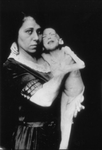 A woman holds a 3 year old child, who is skeletal and ill due to diabetes.