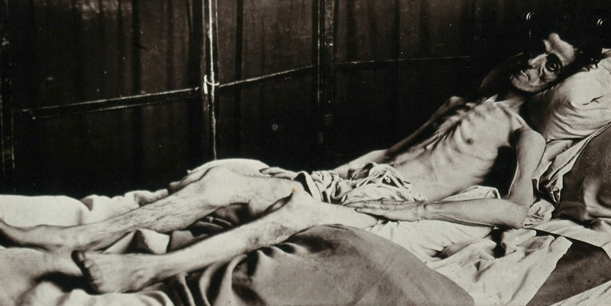 An unidentified man lies in a bed. He is skeletal and clearly ill, due to diabetes.